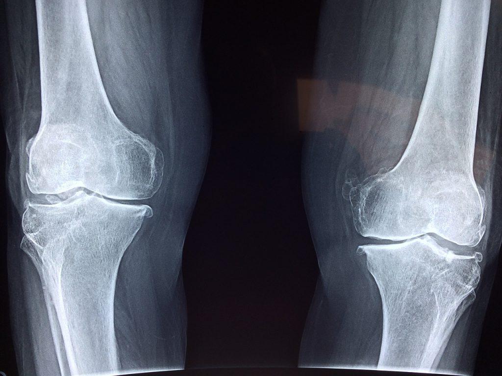 Does Milk Support Bone Health?